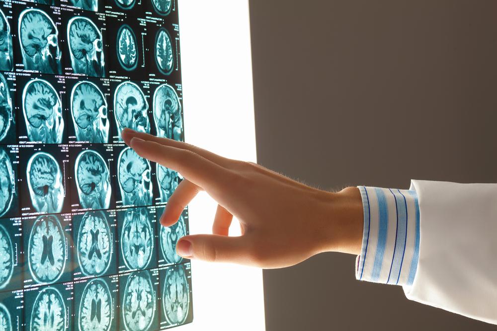 Emerging Trends in Teleradiology